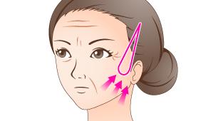 ナチュラルリフト:頚部フェイスリフト
