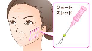 小顔美容鍼(ウルトラVリフト)
