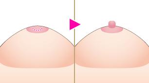 陥没乳頭形成術