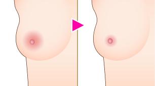 乳輪縮小術
