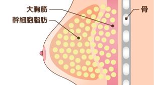豊胸術:幹細胞脂肪注入(ピュアグラフト豊胸術)