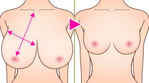 リダクション(乳房縮小術)