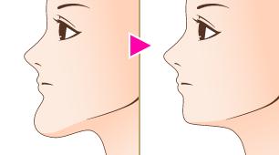 顎(アゴ、あご)削り