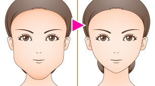 下顎(アゴ、あご)全周骨切り術(小顔形成術)