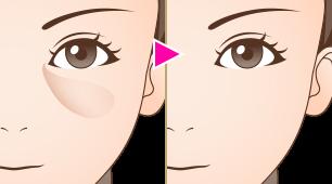 下眼瞼結膜側脱脂術