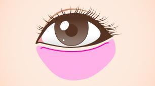 下眼瞼切開:除皺術(タルミ取り)