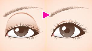 上眼瞼陥凹症