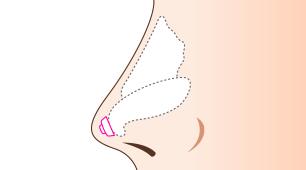 鼻尖延長術(軟骨移植)