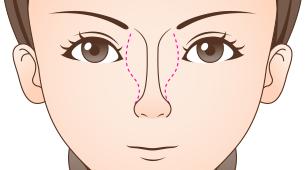 整鼻術(鼻骨骨切り術)